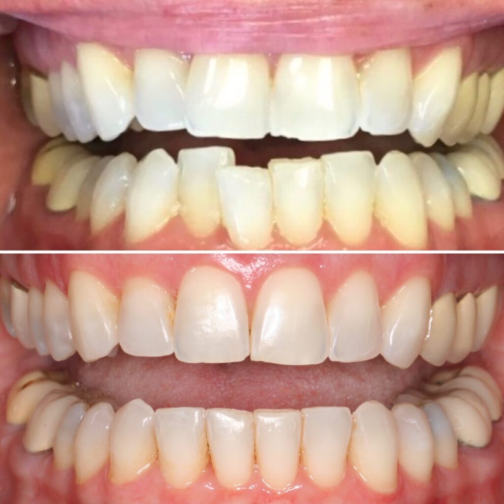 Chipped uneven teeth