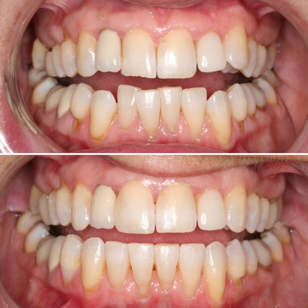 Crooked upper and lower teeth
