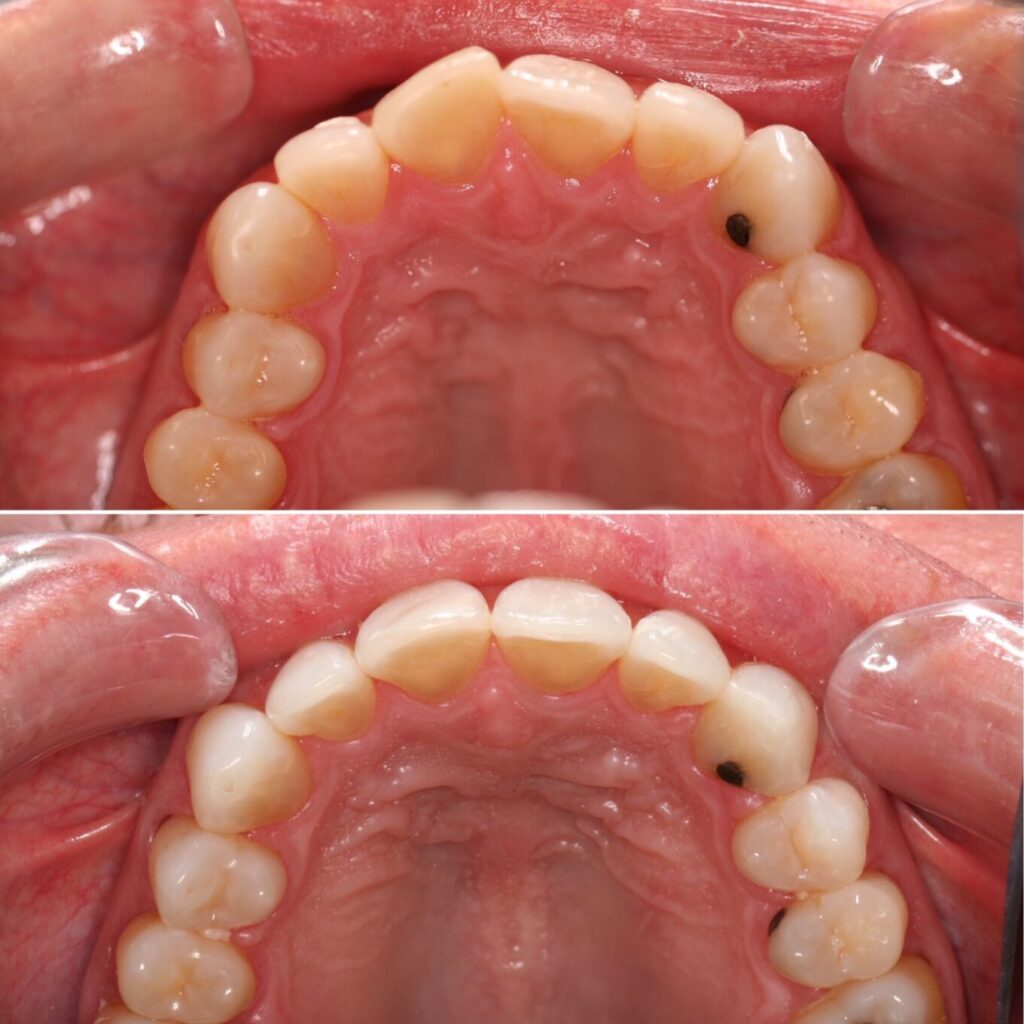 Moderate crowding upper teeth