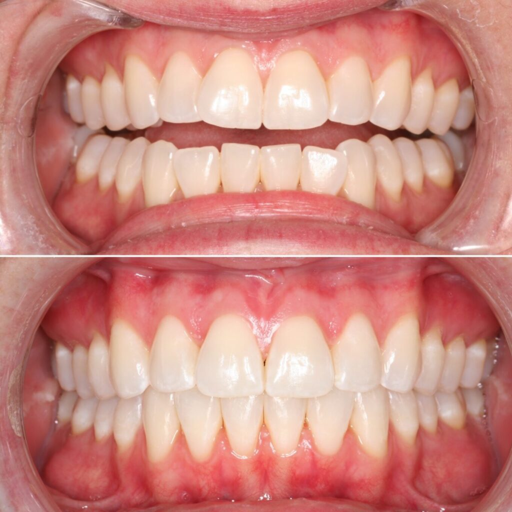 Perfect results with Invisalign