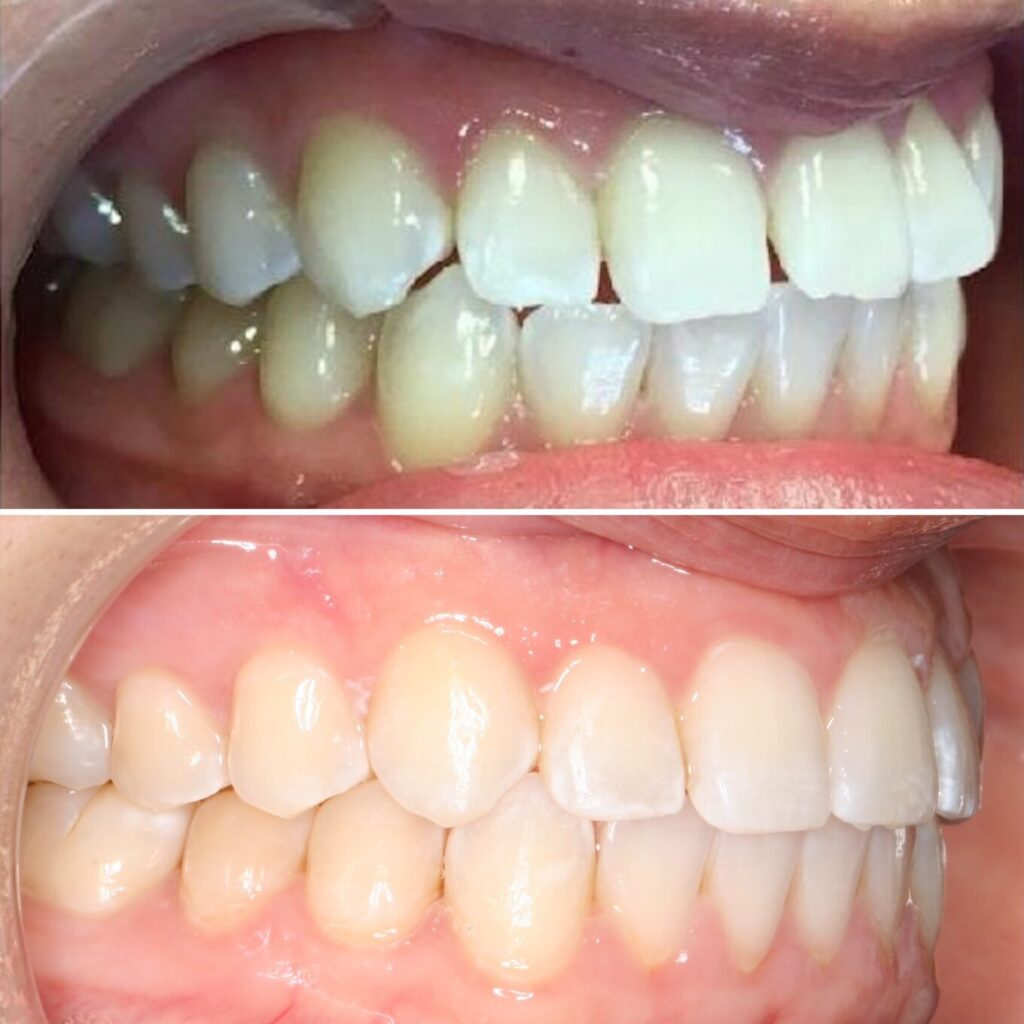 Spaces in front teeth