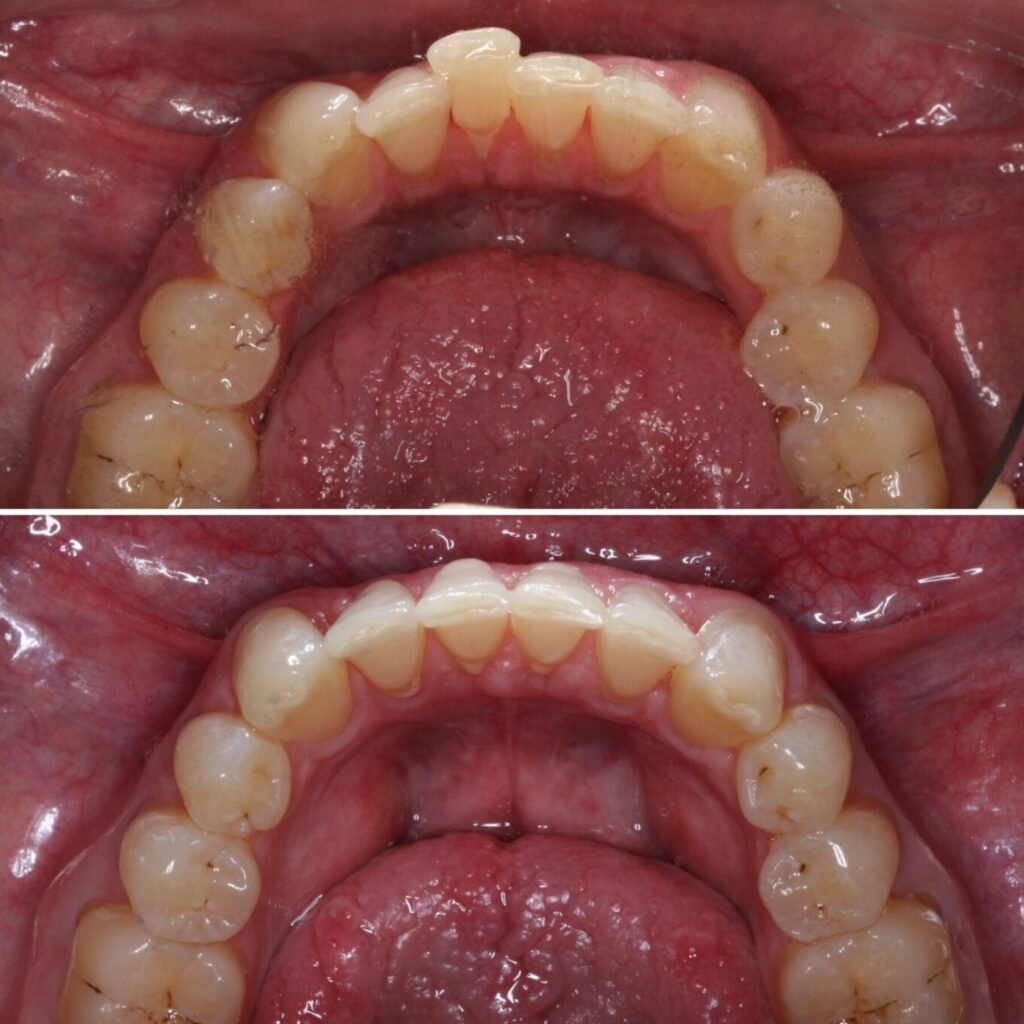 invisalign-dentist-near-me-schaumburg-il-before-after-photos-1