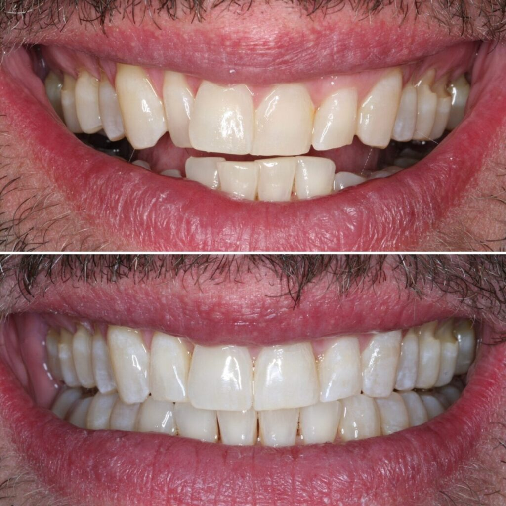 invisalign-dentist-near-me-schaumburg-il-before-after-photos-3